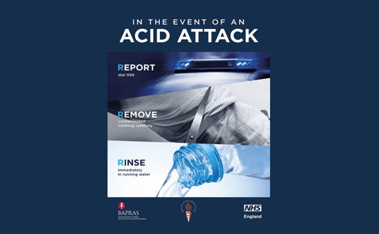 Acid Attack Guidance From SIA