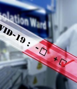 Covid-19 Pandemic Procedure